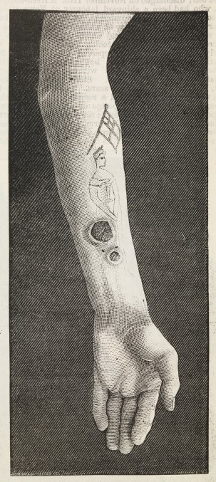 Syphilis infection in a tattoo. Illustration from Notes of Cases on an Outbreak of Syphilis following on Tattooing,in the British Medical Journal, May 4th, 1889.